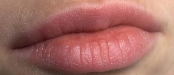 Jak zadbać o pękające usta? Odpowiada Marzena Gross - Darabasz