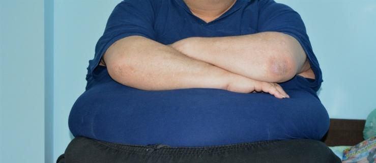 """Elblążanin, który waży 250 kilogramów: """"Jestem skazany na śmierć"""""""
