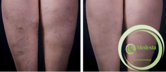 Piękne nogi, czyli skuteczne leczenie żylaków w Klinice Medesta!